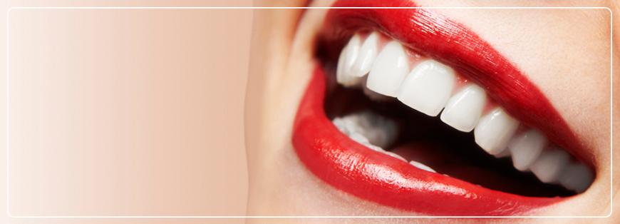 Auto-estima e os dentes (ou falta deles)